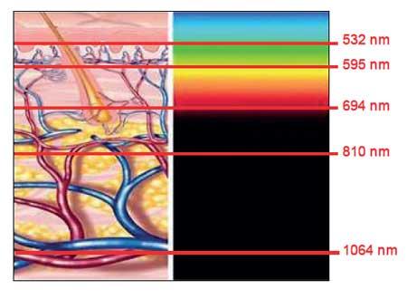 Grafico della lunghezza d'onda Laser Speed a diodo